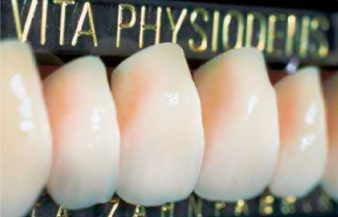Vita artificial teeth