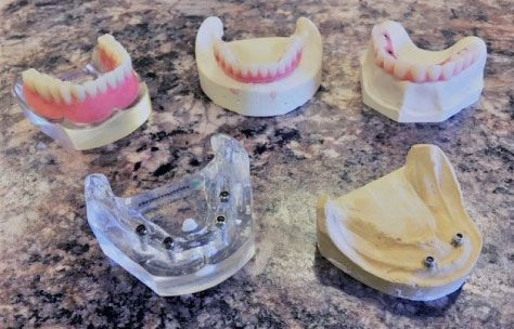 Full and Implant Dentures